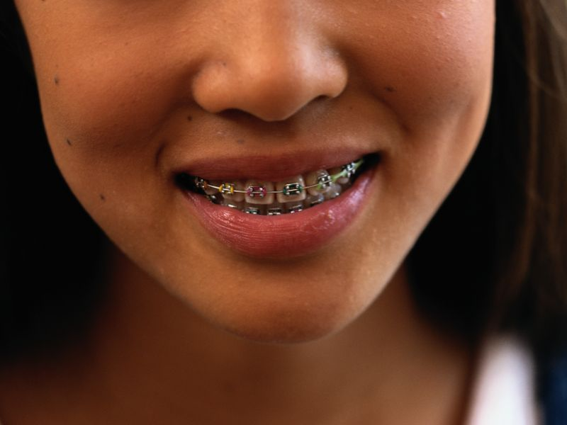 News Picture: Perfect Teeth Won't Guarantee a Perfect Life
