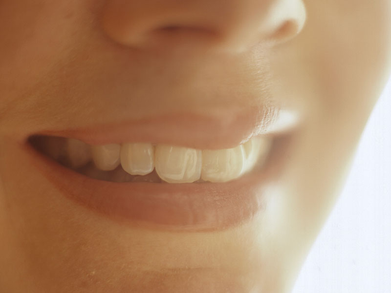 News Picture: Those Whitening Strips May Damage Your Teeth
