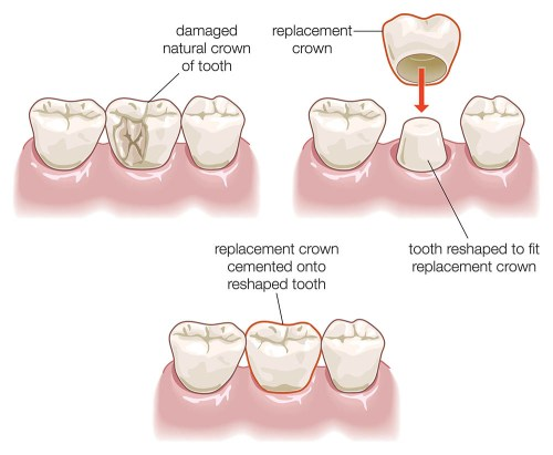 small resolution of illustration of a dental crown procedure