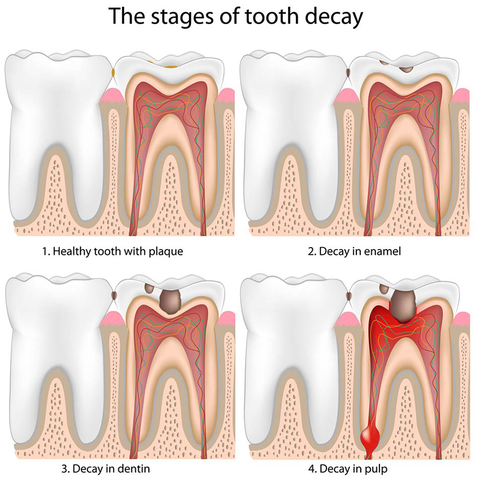 hight resolution of tooth decay