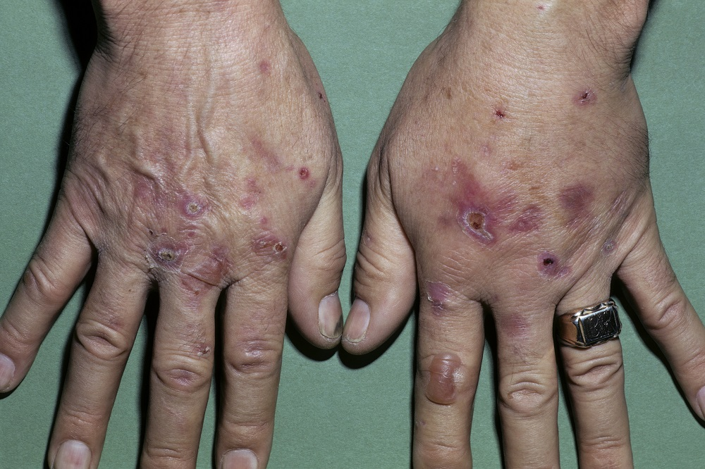 Skin Manifestations of Chronic Hepatitis C Virus Infection