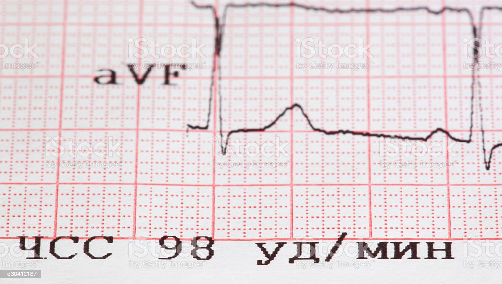Best Cardioversion Stock Photos Pictures & Royalty-Free ...