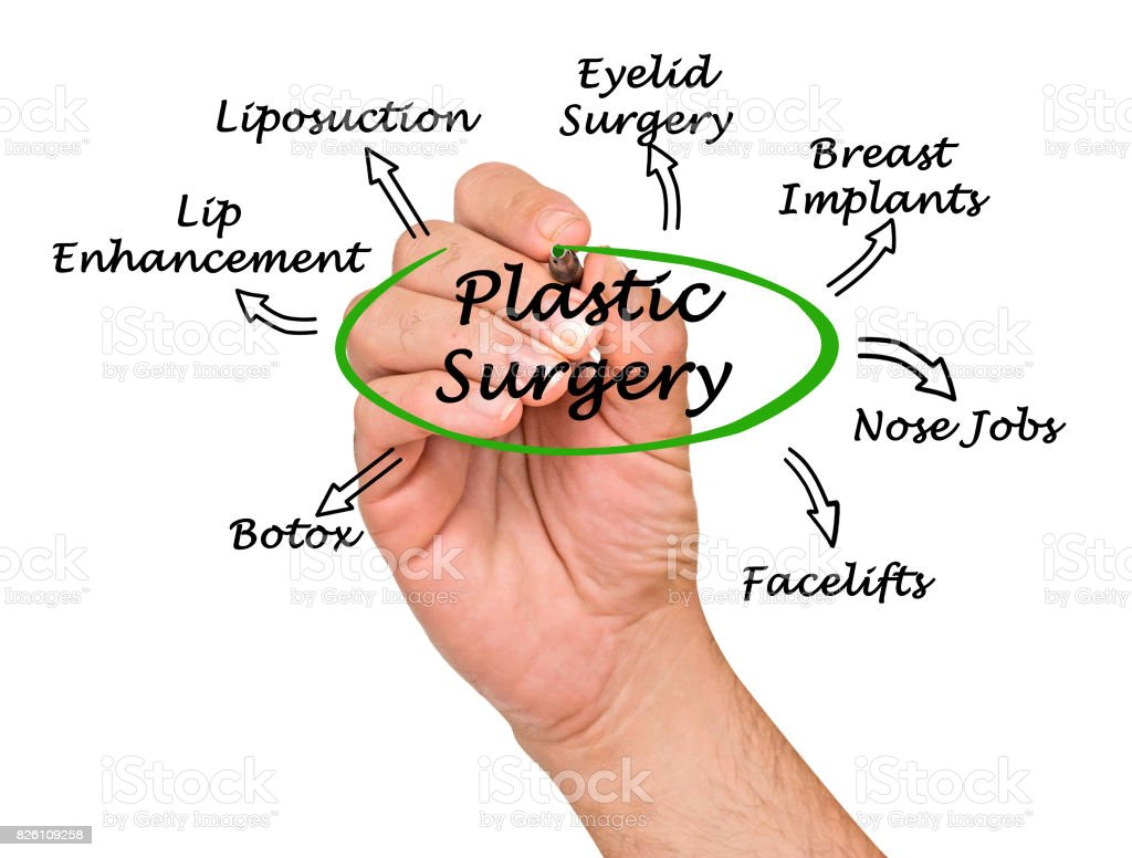 hight resolution of diagram of plastic surgery royalty free stock photo