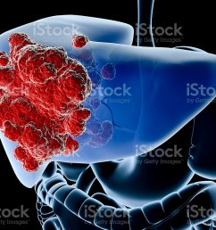 a diagram showing the liver in blue and a cancer in red royalty free stock [ 1024 x 768 Pixel ]