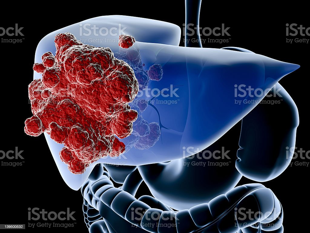 hight resolution of a diagram showing the liver in blue and a cancer in red royalty free stock