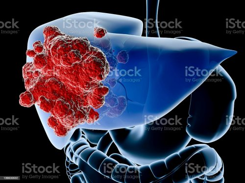 small resolution of a diagram showing the liver in blue and a cancer in red royalty free stock