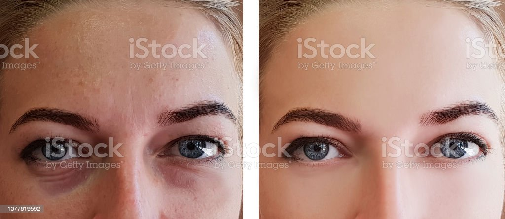 Girl Wrinkles Eyes Before And After Procedures Stock Photo ...