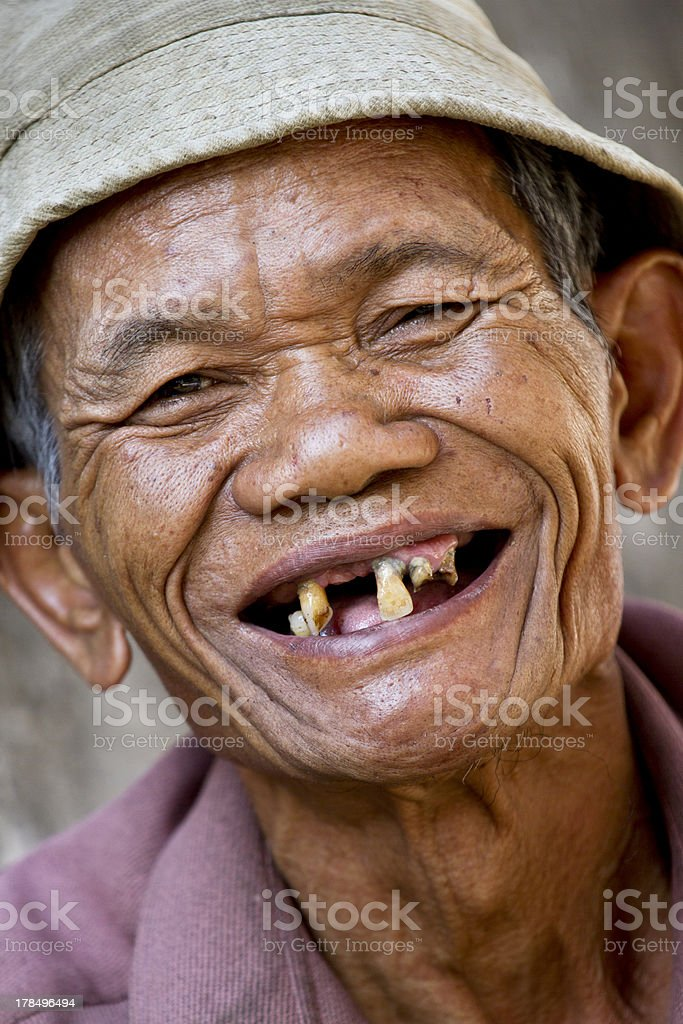 Old Man With No Teeth Smiling : teeth, smiling, Missing, Tooth, Stock, Photos,, Pictures, Royalty-Free, Images, IStock