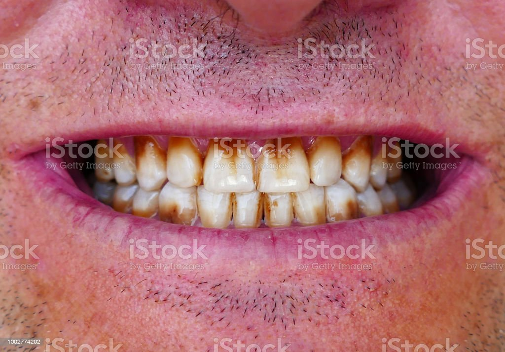Best Oral Cancer Stock Photos Pictures & Royalty-Free ...