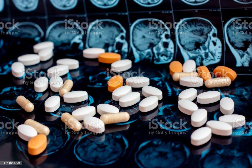 Pharmaceutical Medicine Pills On Magnetic Brain Resonance ...