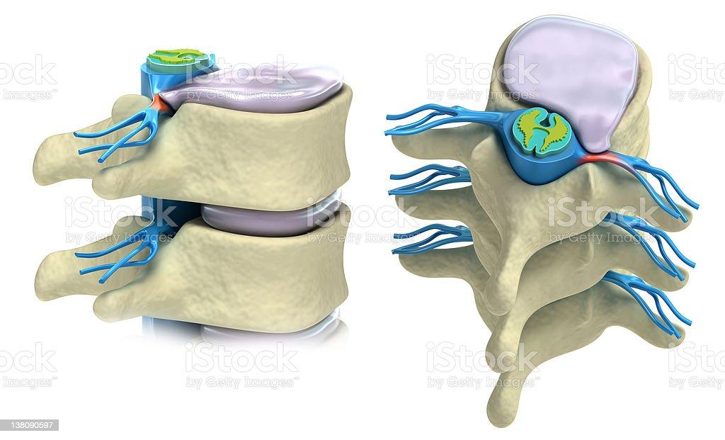 Prolapse Of Intervertebral Disc Isolated On White Stock Photo - Download Image Now - iStock