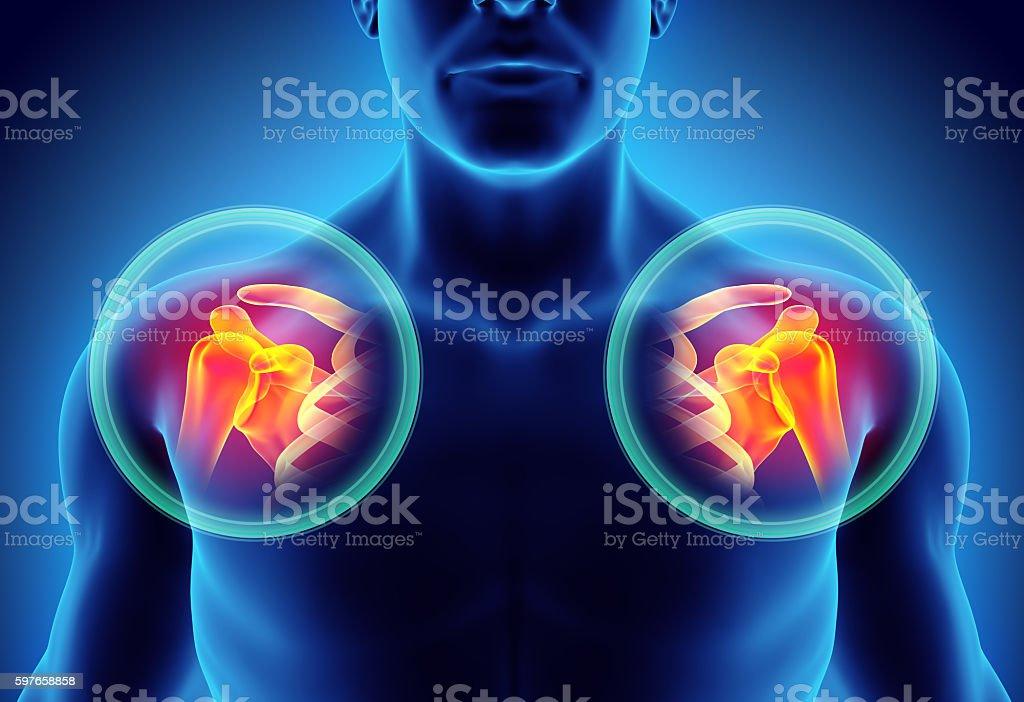 Dislocated Shoulder Diagram Stock Photo