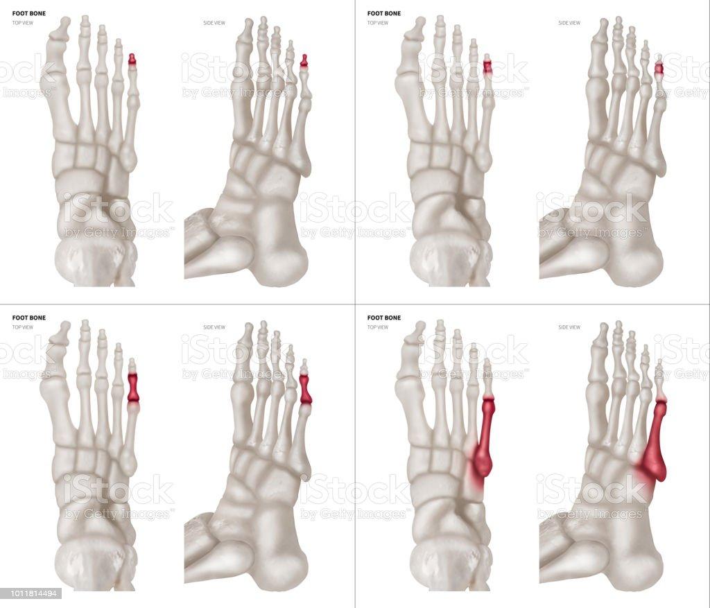 X 射線收集小腳趾腳骨與紅色亮點在不同的疼痛和關節區域頂部和側面視圖醫療保健人體解剖和醫學概念在白色 ...