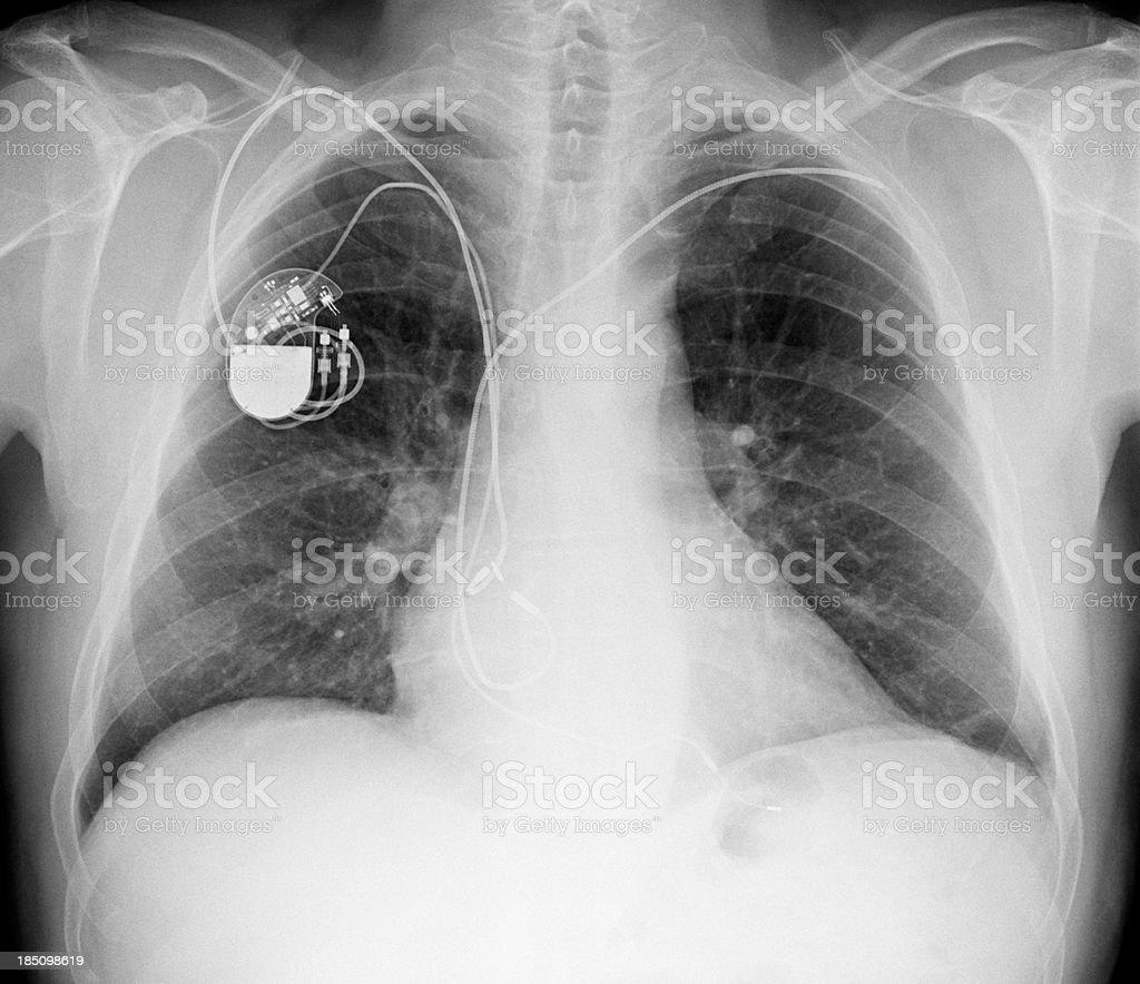 X 線寫真胸にペースメーカー - X線撮影のストックフォトや畫像 ...