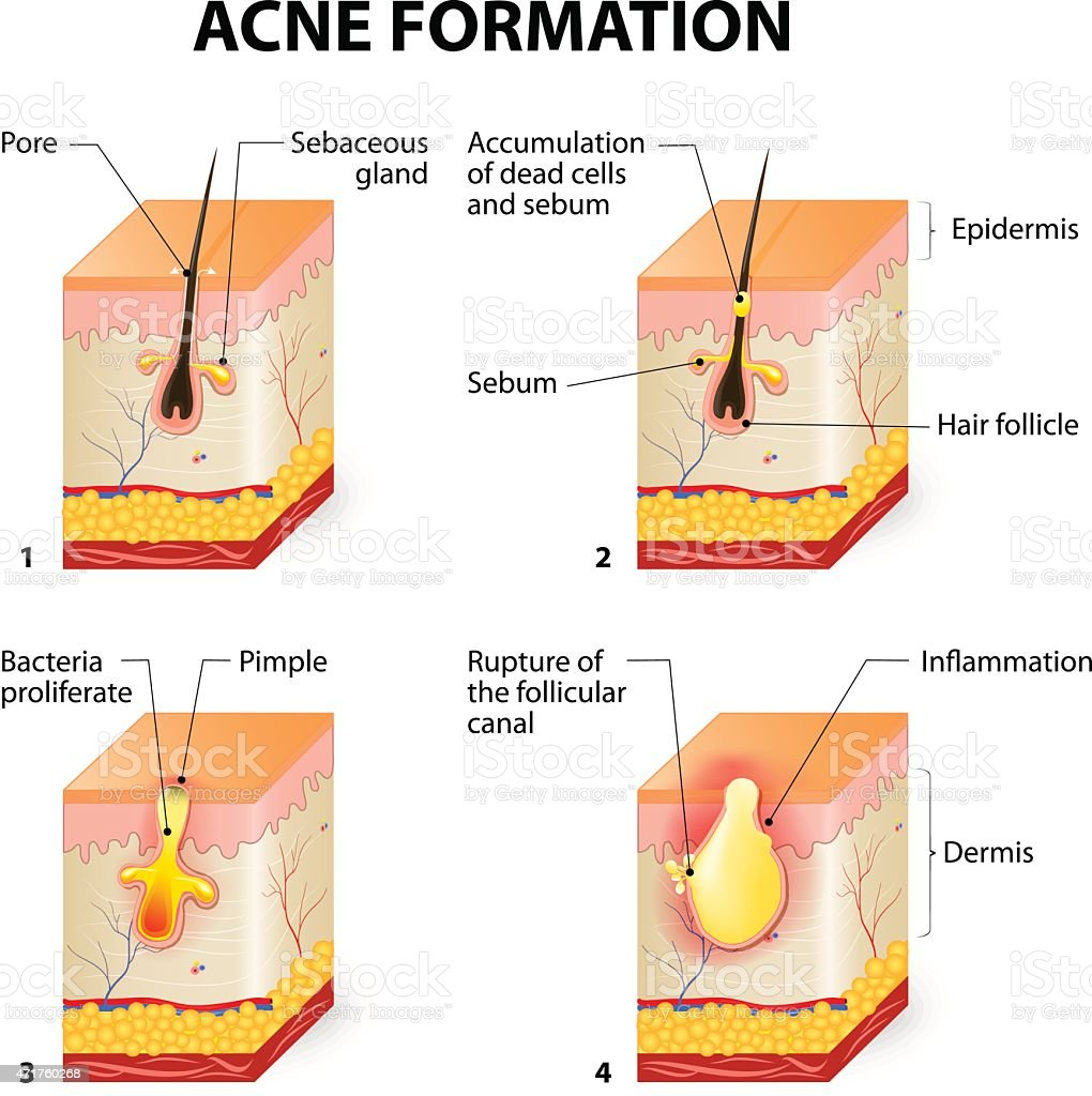 hight resolution of acne formation illustration