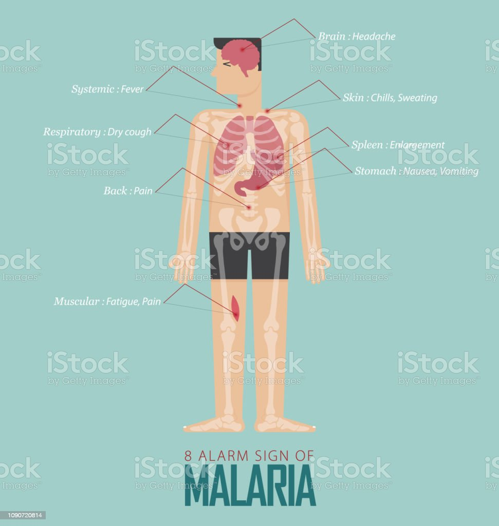 hight resolution of alarm signs of malaria infographic in flat design malaria disease symptom icon set with human