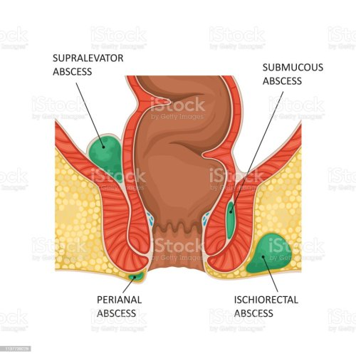 small resolution of anal abscess illustration