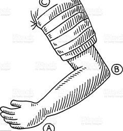 arm bent elbow drawing illustration  [ 915 x 1024 Pixel ]