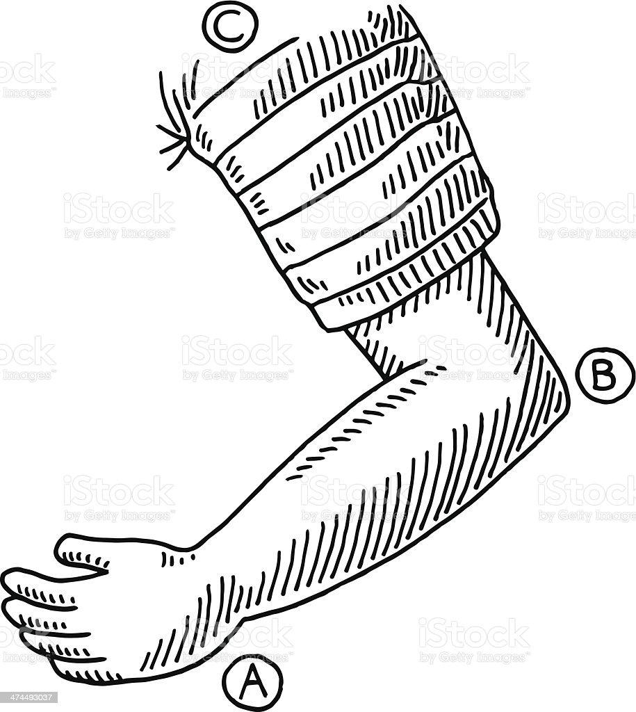 medium resolution of arm bent elbow drawing illustration
