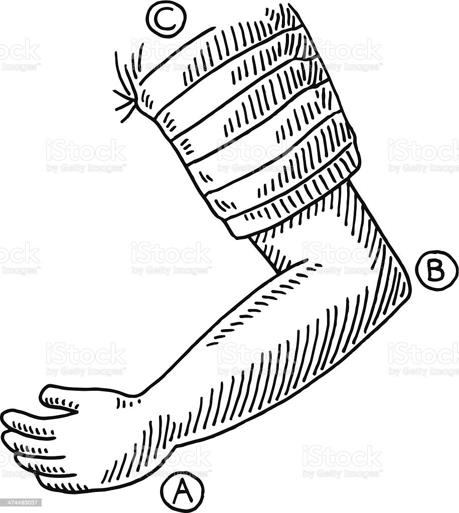 hight resolution of arm bent elbow drawing illustration