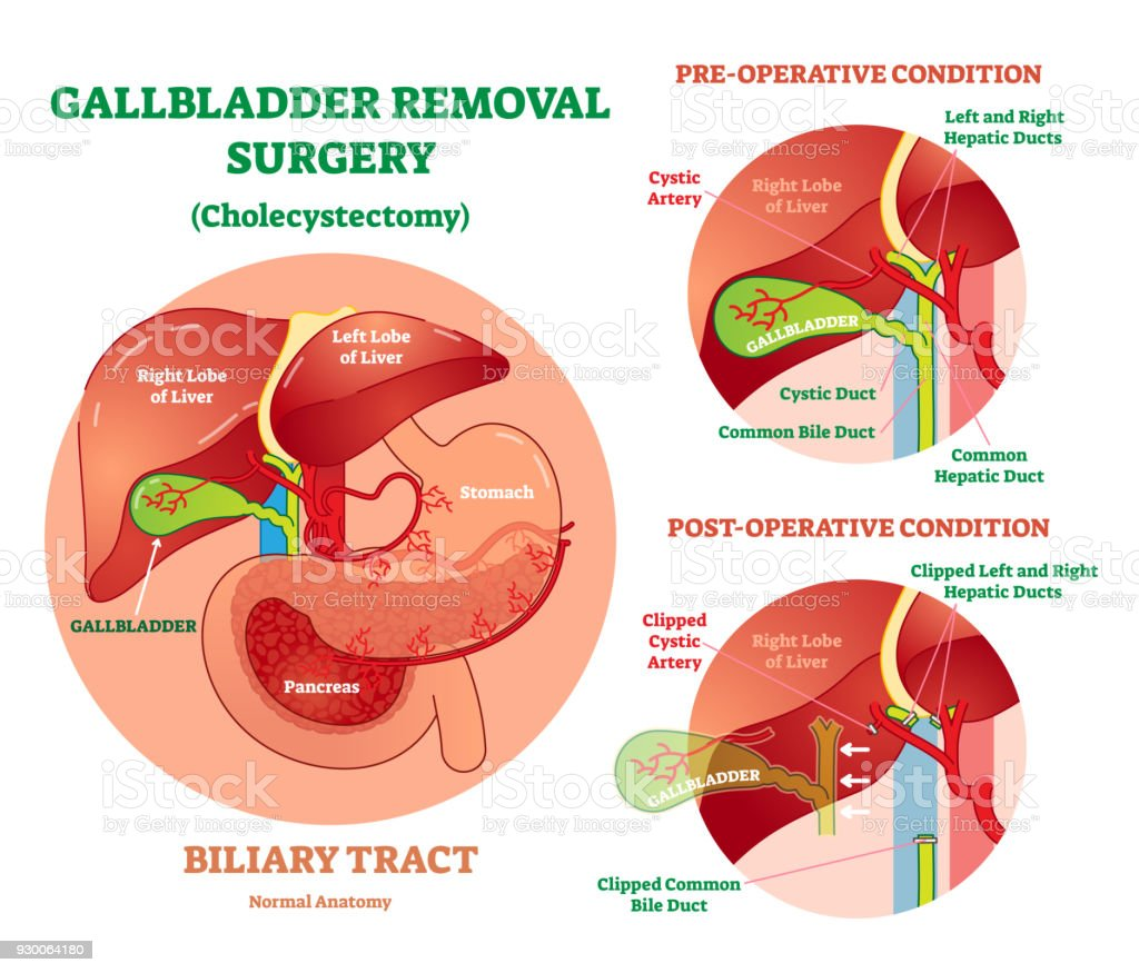 hight resolution of cholecystectomy gallbladder removal surgery anatomical vector illustration diagram with operative conditions royalty