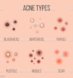 creative vector illustration types of acne pimples skin pores blackhead whitehead scar comedone stages diagram isolated on transparent background  [ 1024 x 1024 Pixel ]