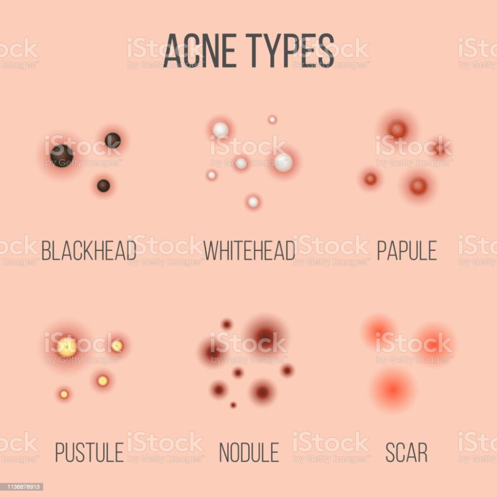 medium resolution of creative vector illustration types of acne pimples skin pores blackhead whitehead scar comedone stages diagram isolated on transparent background
