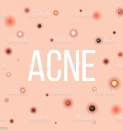 creative vector illustration types of acne pimples skin pores blackhead whitehead  [ 1024 x 1024 Pixel ]