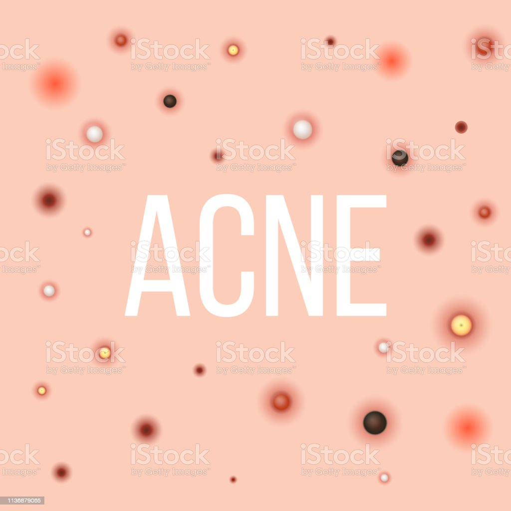 hight resolution of creative vector illustration types of acne pimples skin pores blackhead whitehead