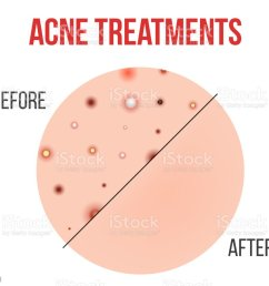 creative vector illustration types of acne pimples skin pores blackhead whitehead  [ 1024 x 910 Pixel ]
