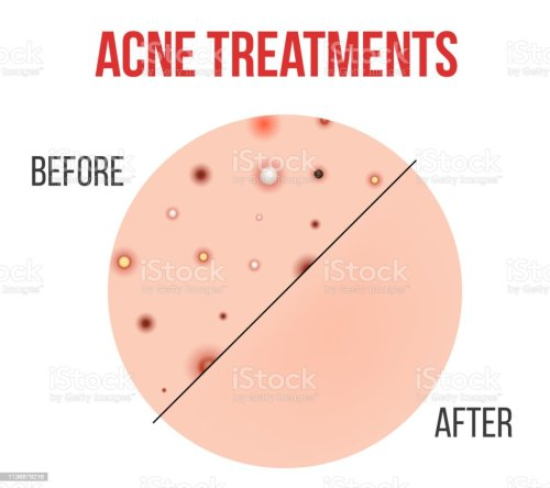 small resolution of creative vector illustration types of acne pimples skin pores blackhead whitehead