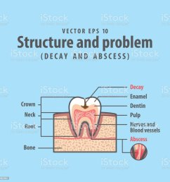 decay and abscess cross section structure inside tooth diagram and chart illustration vector on blue background dental concept illustration  [ 1024 x 1024 Pixel ]
