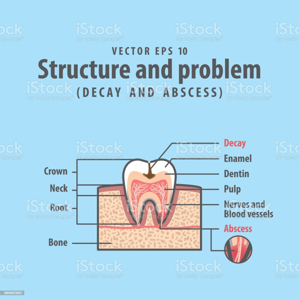 hight resolution of decay and abscess cross section structure inside tooth diagram and chart illustration vector on blue background dental concept illustration