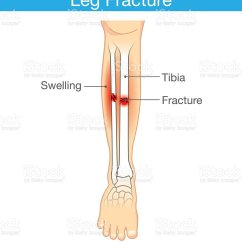 Diagram Of Tibia Stress Fracture 3 Way Switch Wiring Diagrams Royalty Free Clip Art Vector Images Illustrations Leg Illustration
