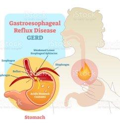 gastroesophageal reflux disease diagram scheme royalty free gastroesophageal reflux disease diagram scheme stock vector art [ 1024 x 885 Pixel ]