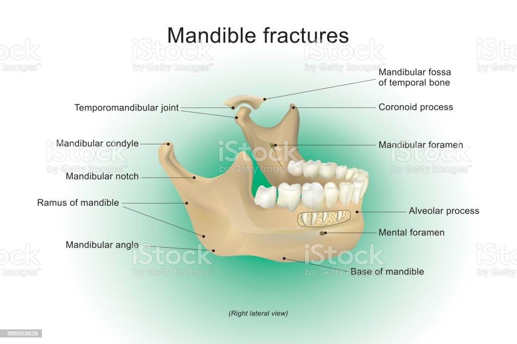 human mandible diagram betty crocker easter bunny cake fractures vector anatomy stock art more royalty free