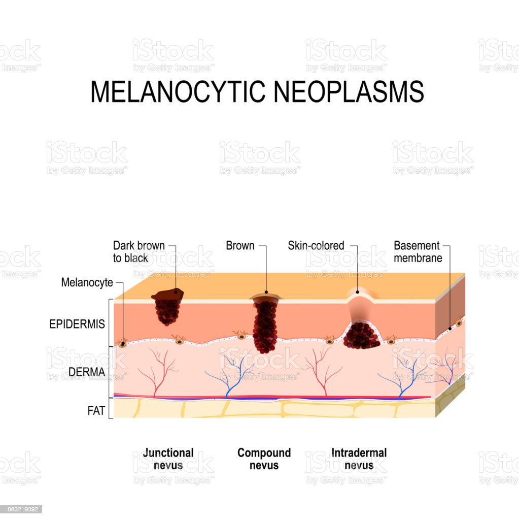 hight resolution of melanocytic nevus difference between a birthmark mole and nevus royalty free melanocytic nevus