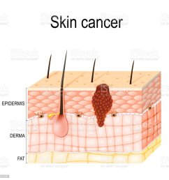 melanoma skin cancer royalty free melanoma skin cancer stock vector art amp more [ 1023 x 1024 Pixel ]