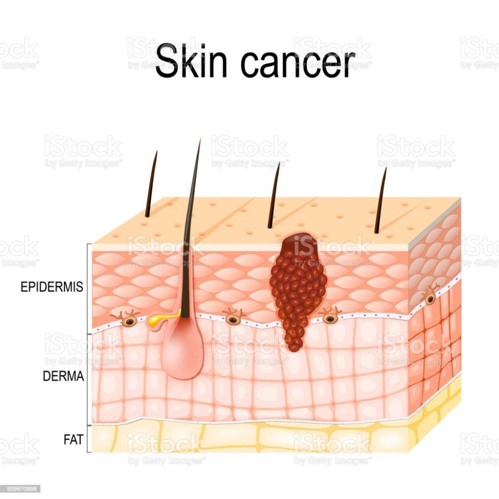 medium resolution of melanoma skin cancer royalty free melanoma skin cancer stock vector art amp more