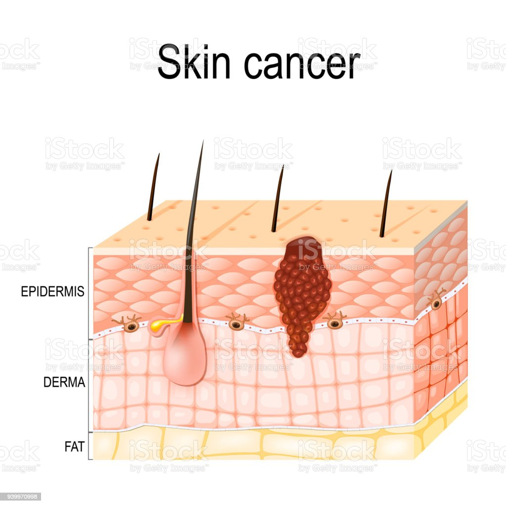 hight resolution of melanoma skin cancer royalty free melanoma skin cancer stock vector art amp more