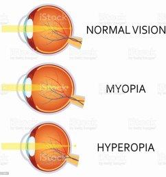 optical human eye defects myopia and hyperopia illustration  [ 1024 x 1024 Pixel ]