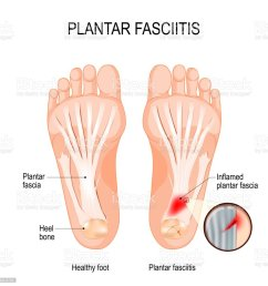 plantar fasciitis disorder of the connective tissue which supports the arch of the foot royalty [ 1024 x 1023 Pixel ]