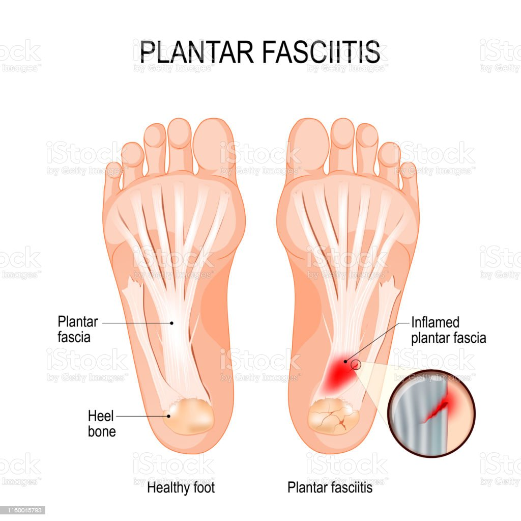 hight resolution of plantar fasciitis disorder of the connective tissue which supports the arch of the foot royalty