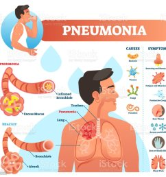 pneumonia vector illustration labeled diagram with causes and symptoms illustration  [ 1024 x 985 Pixel ]