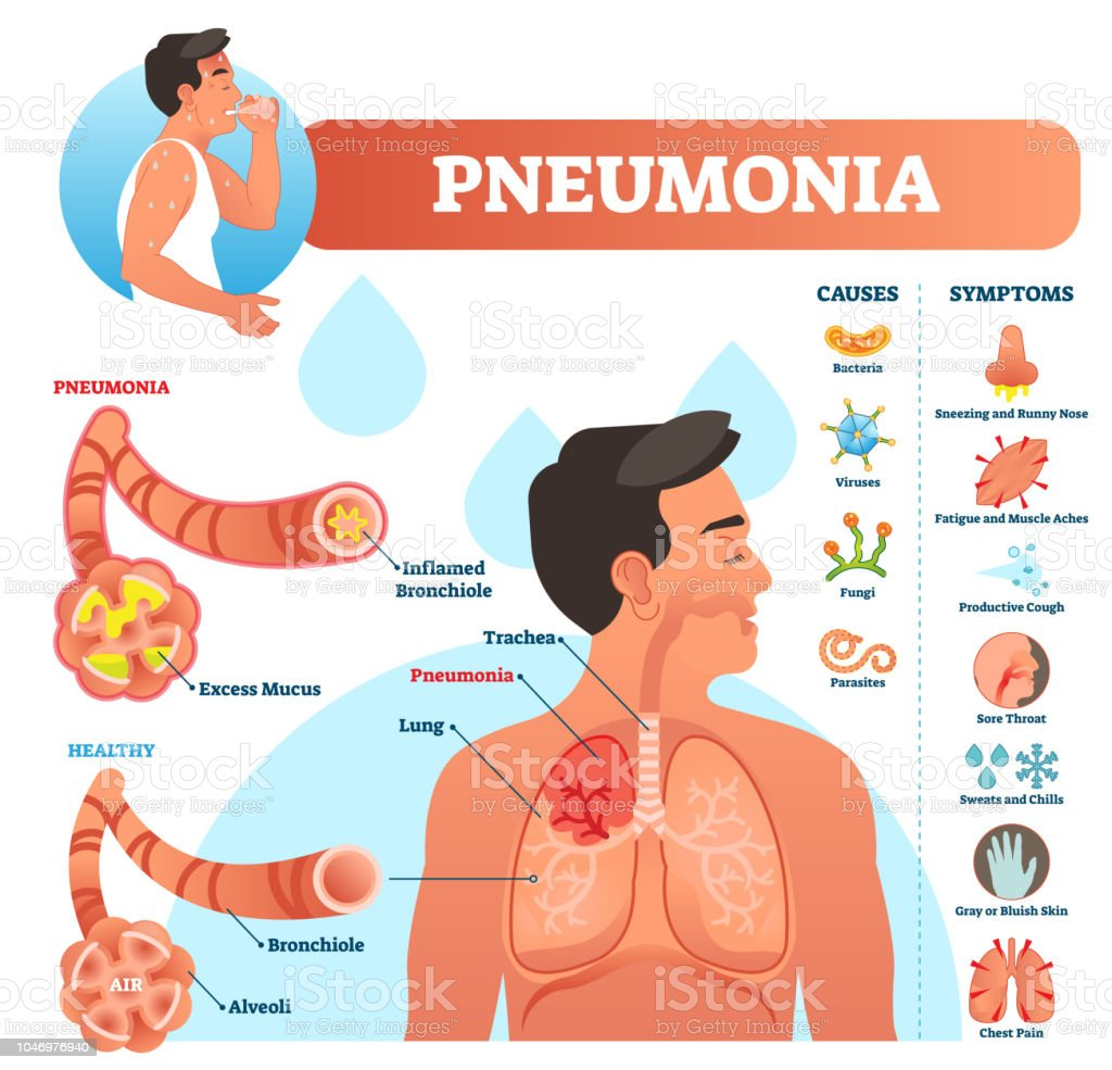 hight resolution of pneumonia vector illustration labeled diagram with causes and symptoms illustration