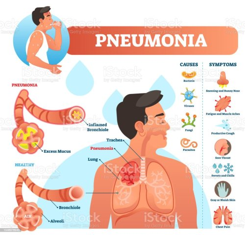 small resolution of pneumonia vector illustration labeled diagram with causes and symptoms illustration