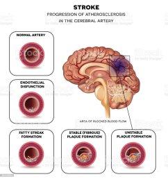 stroke in the brain artery illustration  [ 969 x 1024 Pixel ]