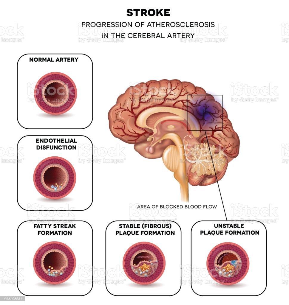 hight resolution of stroke in the brain artery illustration