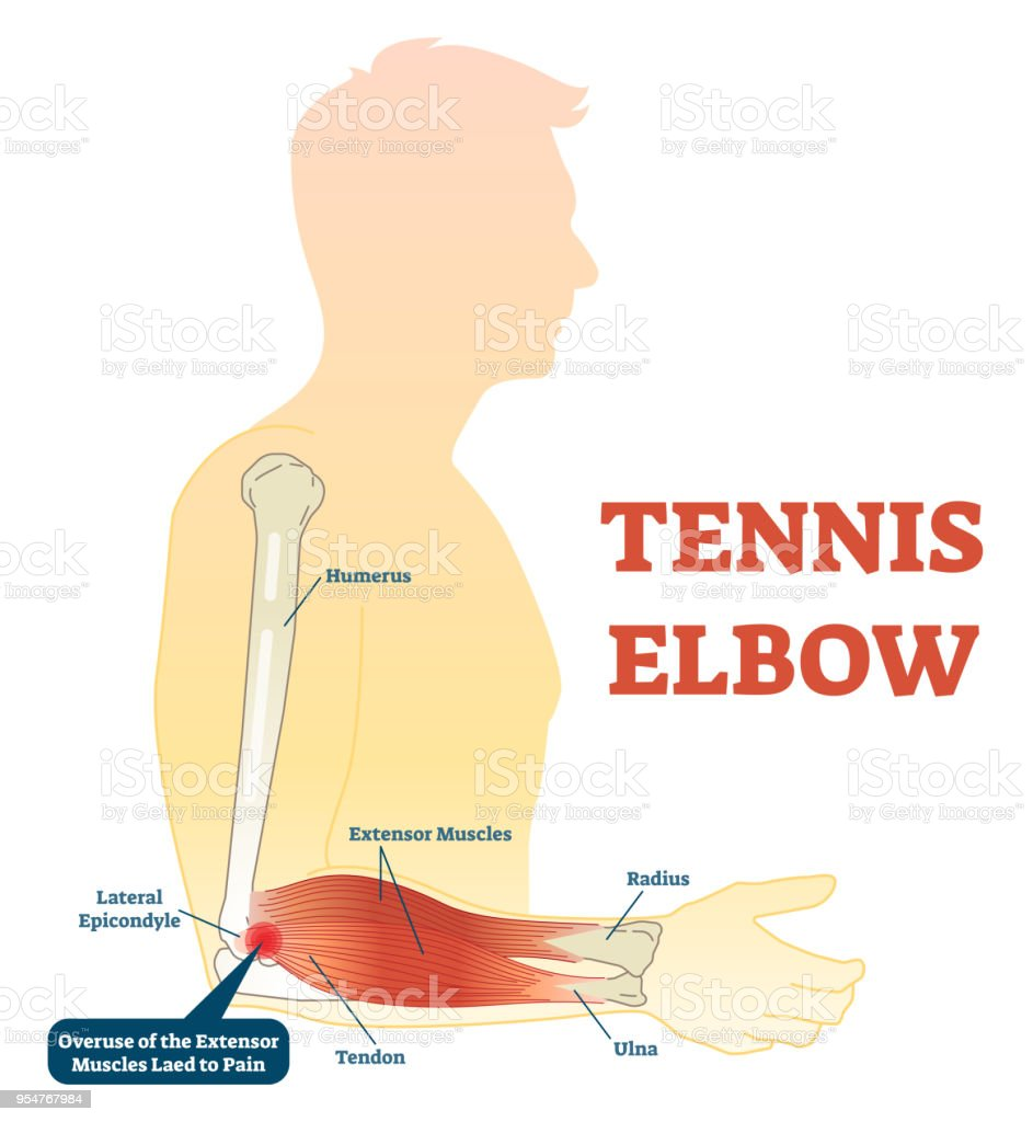 medium resolution of tennis elbow medical fitness anatomy vector illustration diagram with arm bones joint and muscles