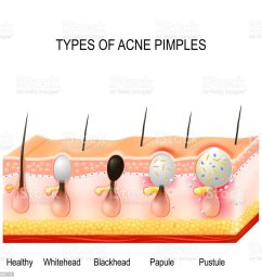 types of acne pimples royalty free types of acne pimples stock vector art amp  [ 1024 x 1024 Pixel ]